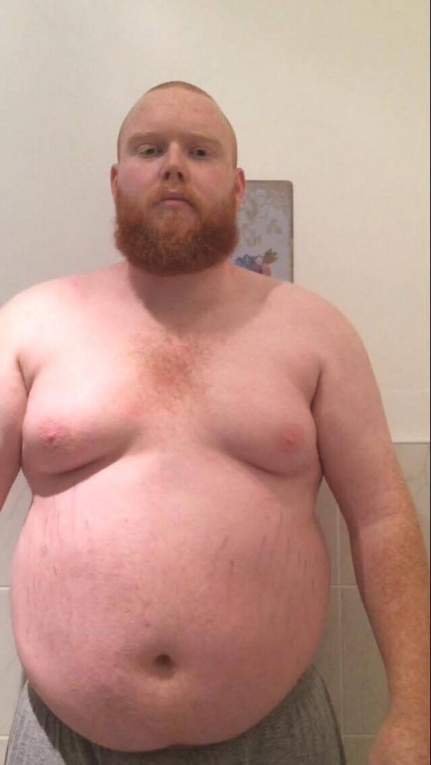 Thomas said he was in a dark place when his weight escalated to more than 22stone