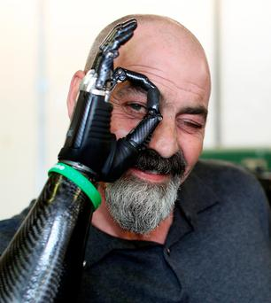 Bionic man Nigel Ackland with his prosthetic arm. Photo: maxwellphotography.ie