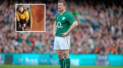 Brian O'Driscoll needed 18 stitches after a skiing accident
