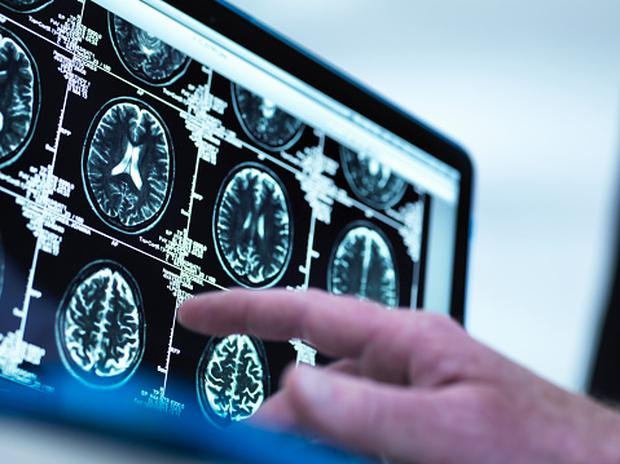 Brain activity continues 10 minutes after death