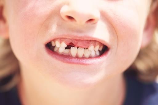 Vice President of the IDA Dr Anne Twomey said an increasing number of children as young as 18 months are having their teeth removed every year because of decay