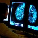 More than eight in 10 GPs said patients with new clinically suspected cancer were waiting six weeks for assessment. Stock Image