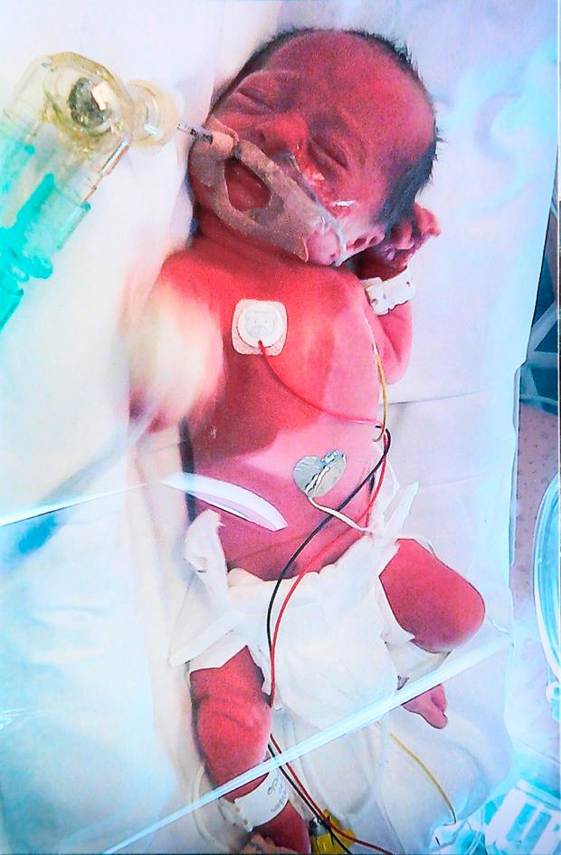 Teagan was just three pounds when she was born