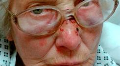 Burglary victim Eva Sutton was viciously beaten in her home