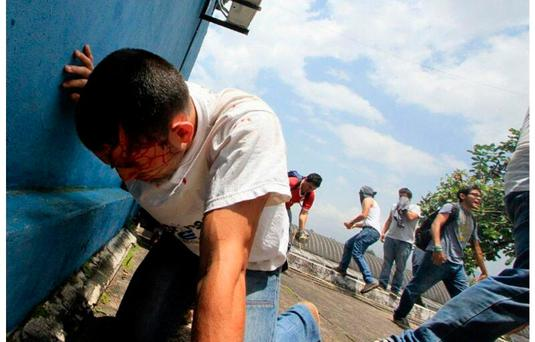 College student dies during Venezuela protest