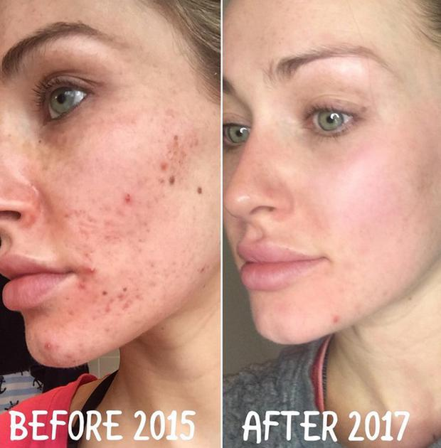 Irish model Maeve Madden shared pictures of her skin journey on Instagram