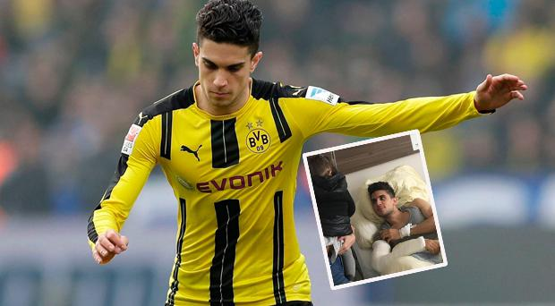 Borussia Dortmund defender Marc Bartra described the bomb attack on the team coach in which he was injured as the