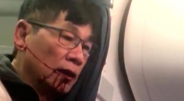 Two security officers fired over United Airlines incident which saw passenger (69) dragged off plane