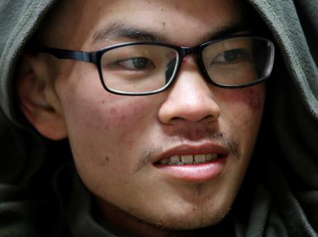 Taiwanese Liang Sheng Yueh smiles as he undergoes treatment at a hospital after being rescued, Kathmandu, Nepal April 26, 2017. Liang Sheng Yueh and his fellow trekker Liu Chen Chun who died were missing for 47 days while on their trek. Photo: REUTERS/Navesh Chitrakar