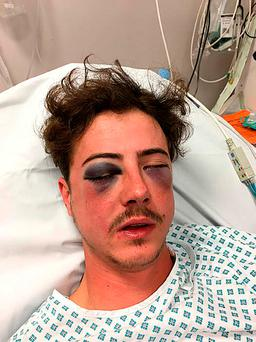 Tottenham Hotspur fan Michael Voller was left with serious injuries after an unprovoked attack by a fellow Spurs supporter who may have mistaken him for a Chelsea fan. Photo: Metropolitan Police/PA Wire