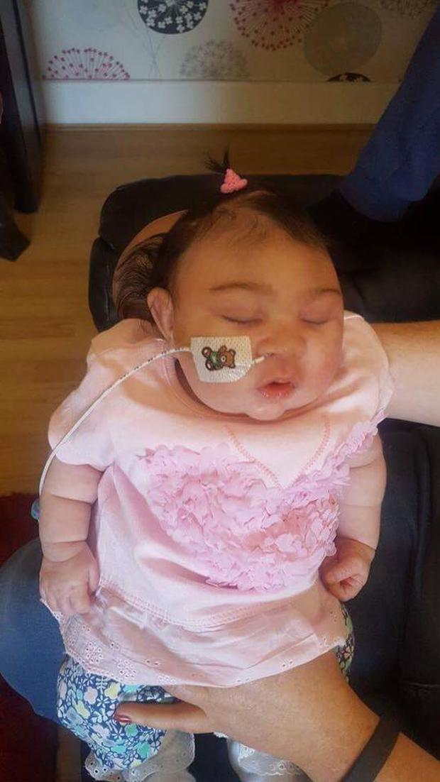 May-Rose was diagnosed with the condition when she was just 20-weeks old