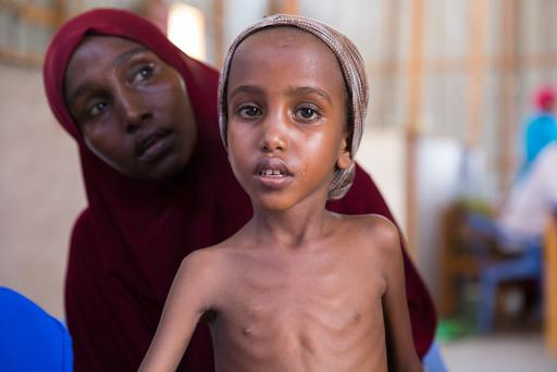 Five year old *Yasmiin is screened by Hashim Jelle of Concern Worldwide, nutrition centre in Mogadishu, Somalia.