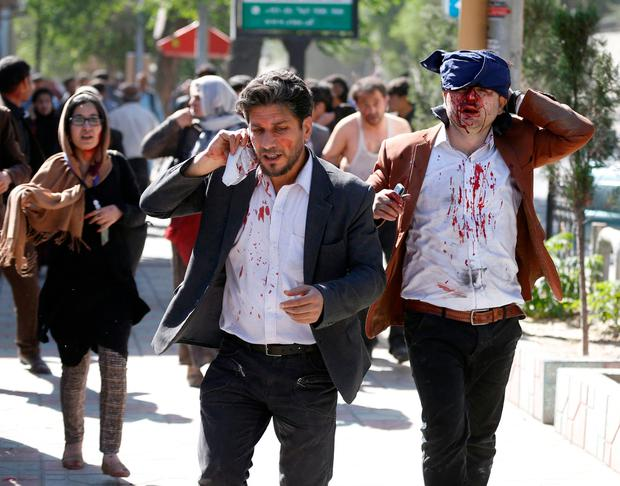 Injured Afghans run from the site of a blast in Kabul, Afghanistan May 31, 2017. REUTERS/Omar Sobhani