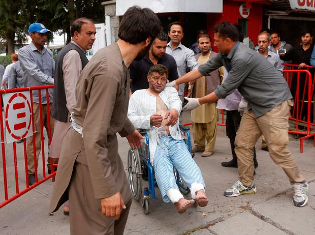 An injured man leaves a hospital after he received treatment, after a blast in Kabul, Afghanistan June 3, 2017. REUTERS/Omar Sobhani