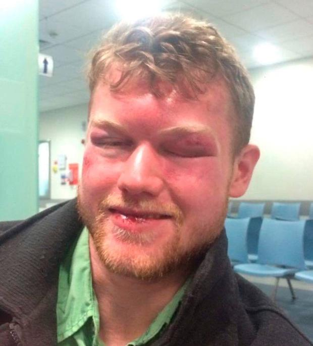 The victim suffered a fractured eye socket and had to have a brain scan