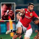 Conor Murray in action and (inset) a bloodied Stuart Hogg