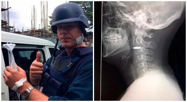 Adam Harvey poses for picture after he's shot and, right, an x-ray of the bullet in his neck