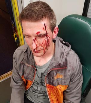 Leon Redlinski described how he was cornered by seven adolescent males as he cycled home in the early hours of June 19