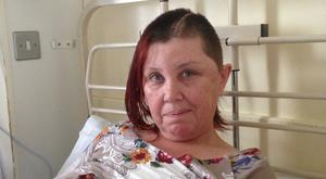 Yvonne underwent brain surgery after an aneurysm in her brain ruptured.