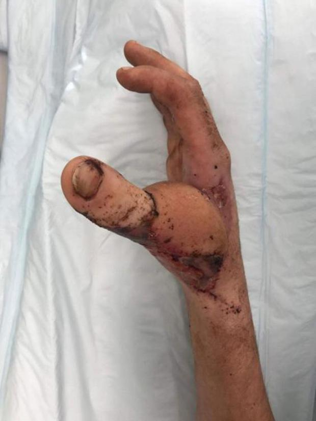 Doctors surgically attached Mr Mitchell's big toe to his hand in place of his thumb (South Eastern Sydney Local Health District)