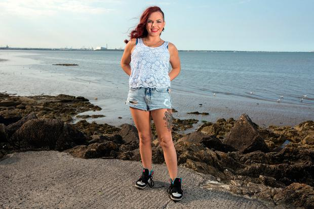Stephanie McAlinden who struggled with anorexia and is now studying eating disorders.