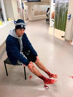 Sam Kanizay shows his injuries as he waits for treatment in hospital in a photo taken by his father. Photo: Getty Images