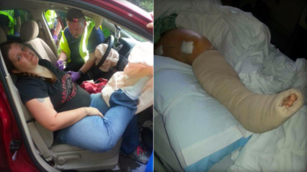 Woman Breaks Four Bones in Car Accident With Feet on the Dashboard
