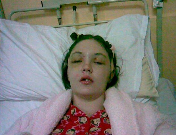 Grainne in hospital following the accident in 2006