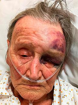 Pensioner who was brutally assaulted in her home in Chorley, Lancashire. Photo: Lancashire Police/PA Wire