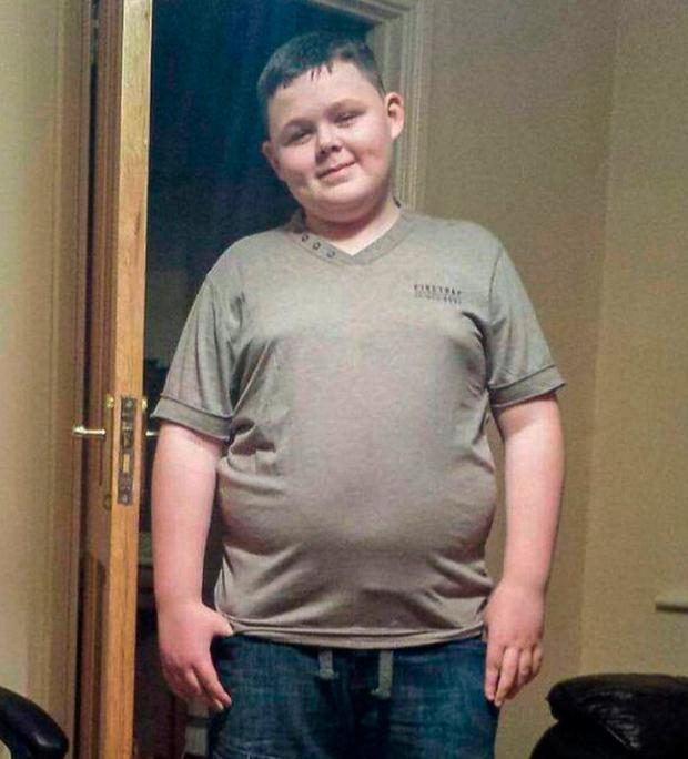Jack was bullied over his weight and has said he is determined not to let the bullies win. Photo: Ciara Wilkinson
