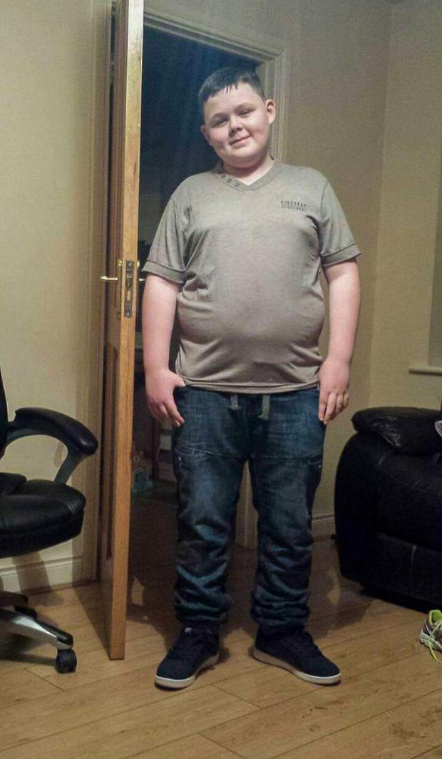 Jack was bullied over his weight and has said he is determined not to let the bullies win Photo: Ciara Wilkinson