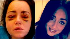 Jessica Bowes in hospital after the attack (left) and Jessica today (right)