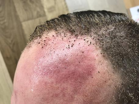 Peter Crowley was left with charring on his head following the explosion this morning (Image via Twitter)