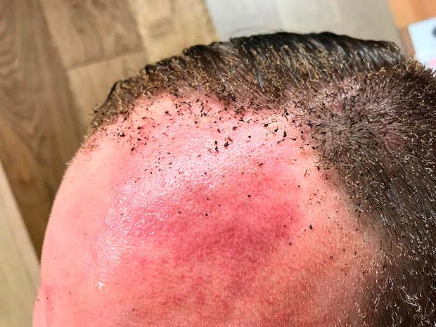 Handout photo taken with permission from the Twitter feed of @cupid5tunt of his charred hair after Scotland Yard declared a terrorist incident following a blast which sent a