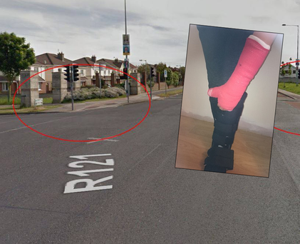 The road where the accident happened and inset, Jacob Borkowski's injuries