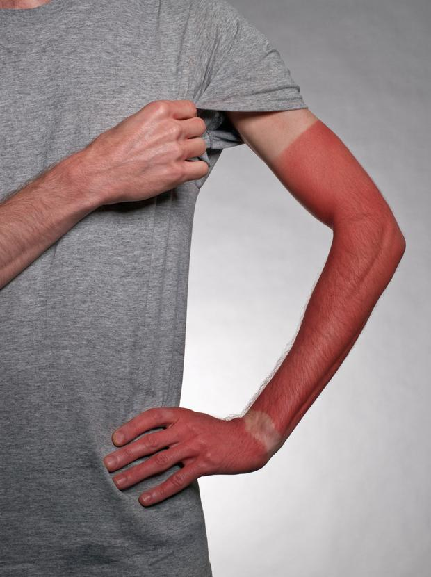 Farmer's tan stock photo Photo: Getty