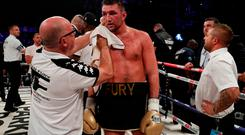 Boxing - Joseph Parker vs Hughie Fury - WBO World Heavyweight Title - Manchester Arena, Manchester, Britain - September 23, 2017 Hughie Fury after the fight Action Images via Reuters/Andrew Couldridge