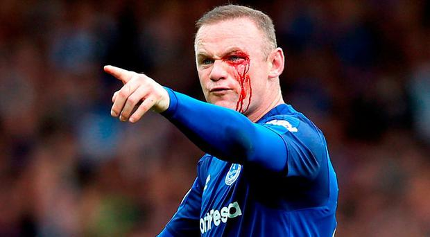 Wayne Rooney points an accusing finger after suffering an eye cut that makes him doubtful for Thursday's Europa League match against Apollon Limassol. Photo: Barrington Coombs/PA Wire