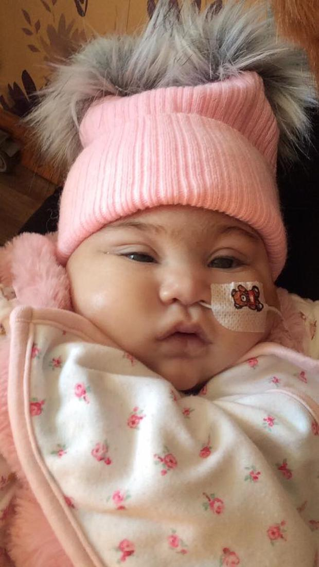 May Rose Gibney died yesterday from encephalocele at just six months old