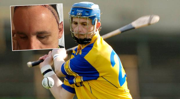 Ken Dunne in action for Tipp in 2006 and (inset) pictured in Cork University hospital after brain surgery