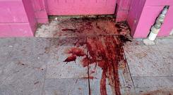 Blood was spotted outside the Station Cafe in Drumcondra. Picture: Reader