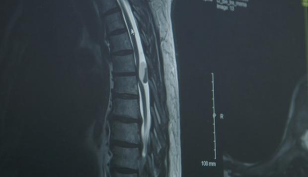 The MRI of Ronan's spine shows the mass pressing on the spinal cord