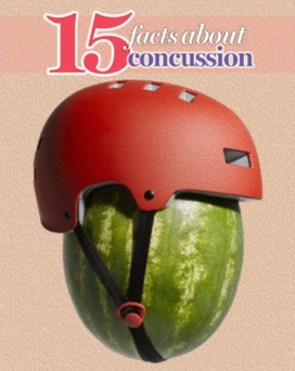 15 facts about concussion