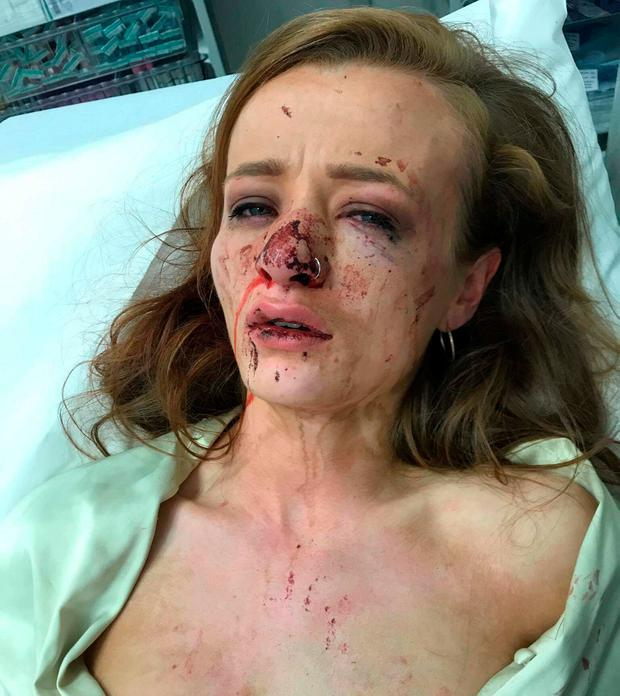 Shanan Reid McDaid was hospitalised after she was attacked by a stranger while waiting to get a taxi home after a night out in Letterkenny