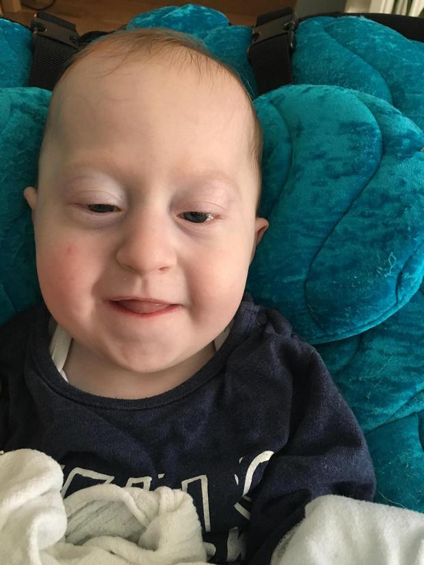Little Harry O'Brien is constantly full of smiles despite suffering from a rare genetic condition.