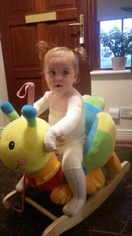 20-month-old Alana suffers from the genetic skin condition called epidermolysis bullosa (EB).