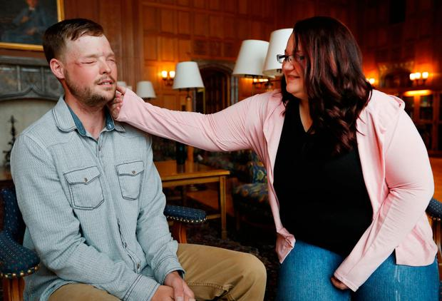 Lilly Ross feels the beard of face transplant recipient Andy Sandness during their meeting at the Mayo Clinic in Minnesota. Picture: AP