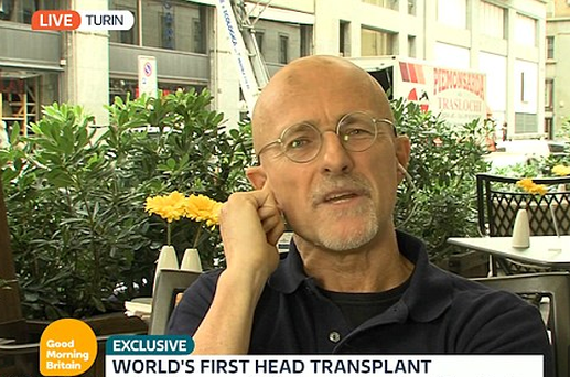 World's First Human Head Transplant Successfully Carried Out, Claims Surgeon