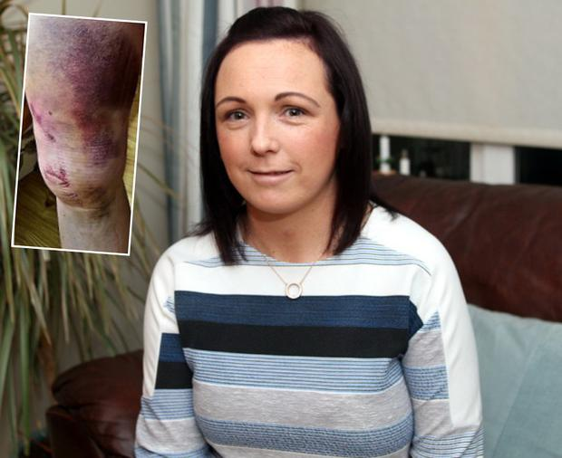 Jennifer Kenny and an image of her badly bruised leg after the incident