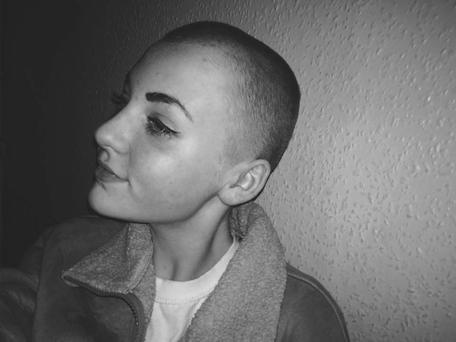 Niamh Baldwin shaved her head for an aorganisation which makes wigs for children who have lost their hair due to cancer